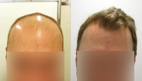 regain hår