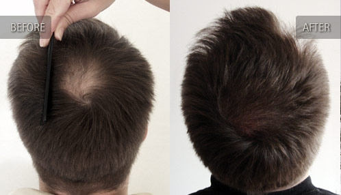 Male Hair Loss Natural Treatment